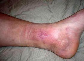 Atopichesky la dermatitis el foro a los adultos